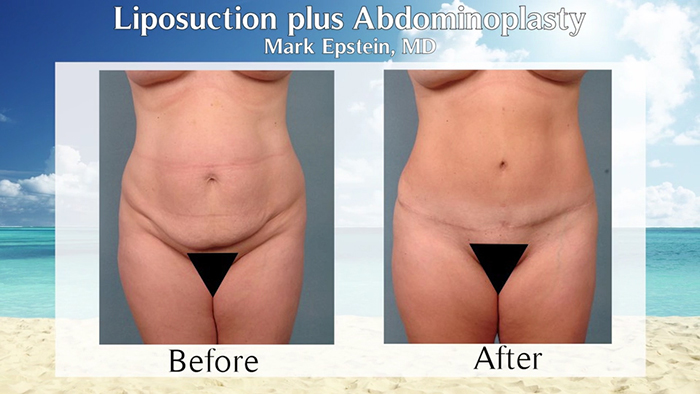 tummy tuck with liposuction before and after