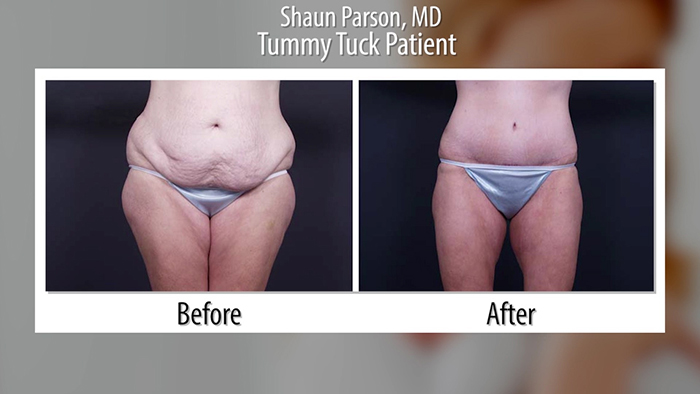 Abdominoplasty procedure before and after.
