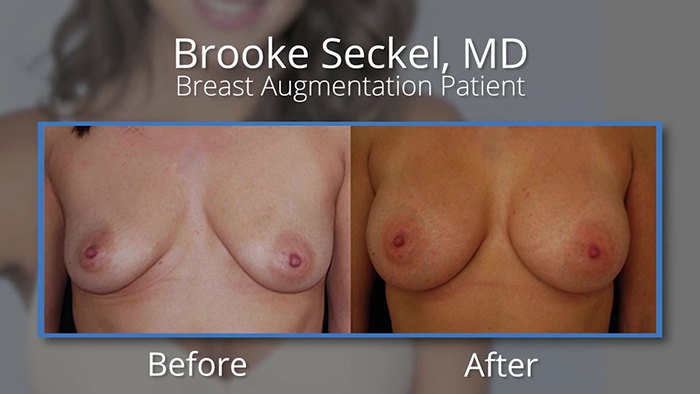 Natural breast augmentation before and after.
