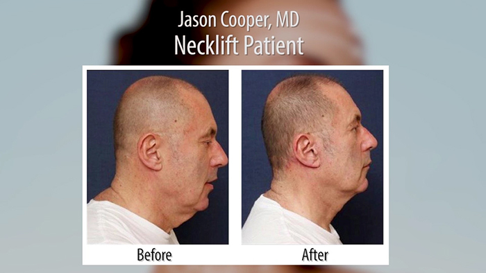 Neck Lift Patient - Dr. Cooper.