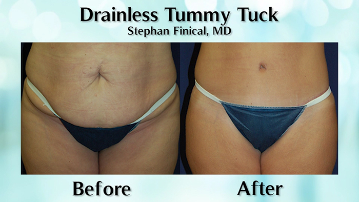 Drainless tummy tuck before and after.