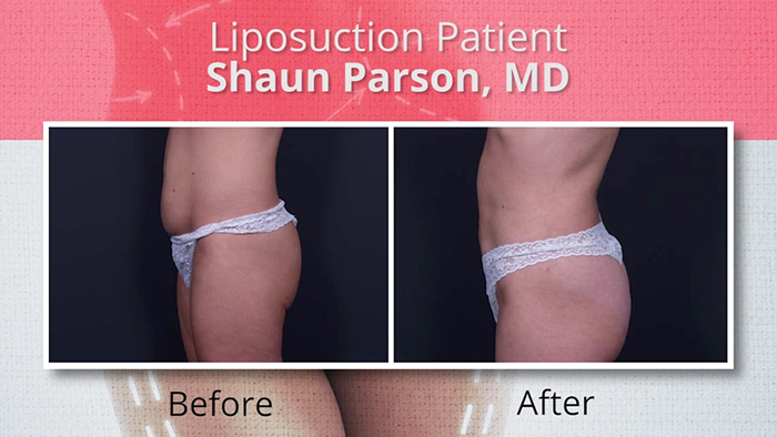 Female liposuction patient 2.