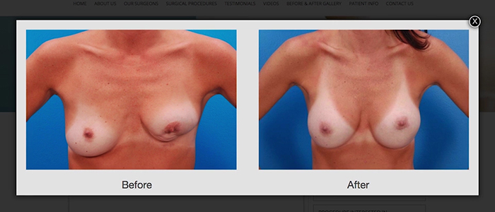 Breast revision results.