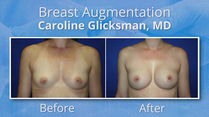 Experience matters in breast augmentation.