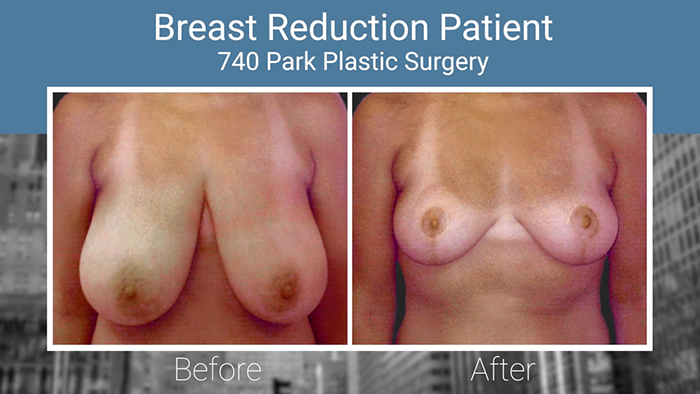 Breast reduction results - Dr. Broumand.