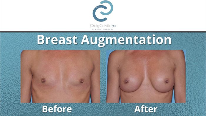 A harmonious breast augmentation.