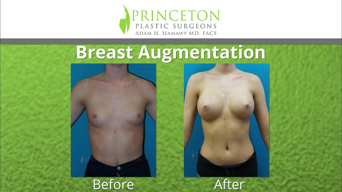 Breast augmentation results - Dr. Hamawy.