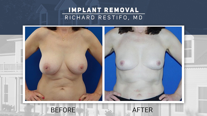Breast implant removal patient - Restifo.,