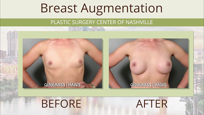 Breast augmentation results - Gingrass.