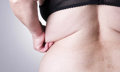 Sagging Skin After Massive Weight Loss Demands Plastic Surgery.