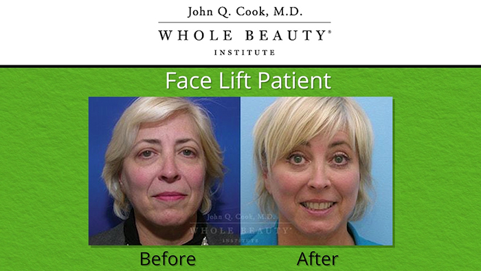 Facelift results - Dr. Cook.