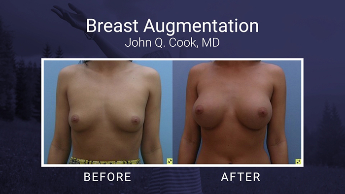 Breast Augmentation Results - Dr. Cook